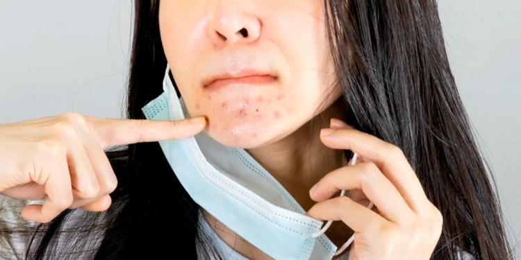 Efectos del Uso Prolongado del Tapabocas en la Piel